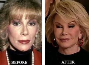 Plastic Surgery/Botox